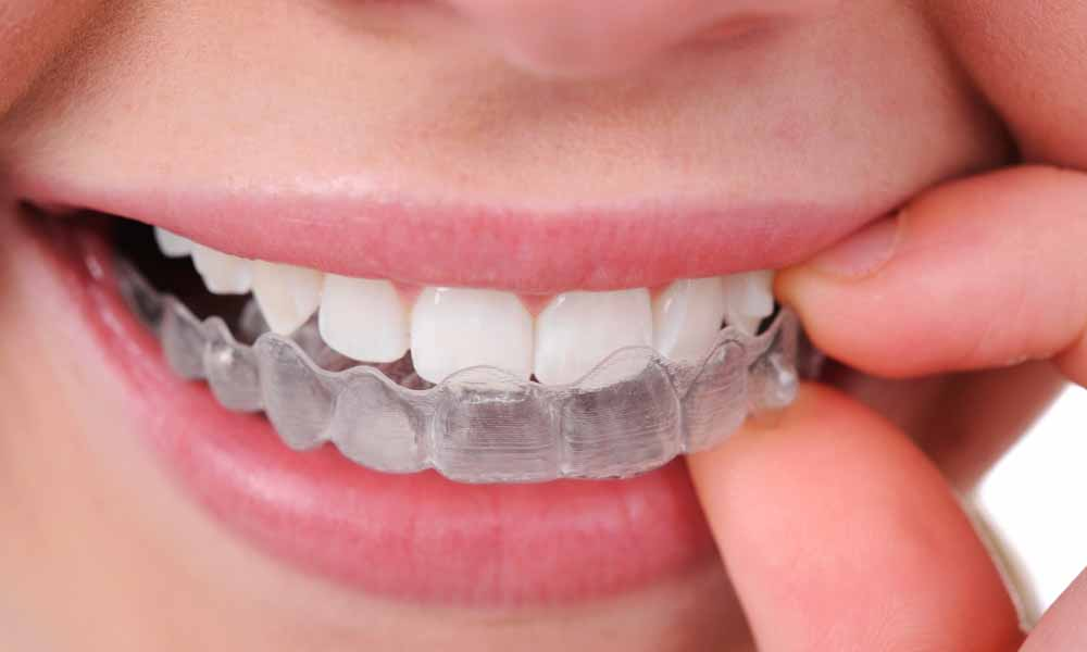 Cosmetic Dentistry Is the Secret to a Beautiful Smile