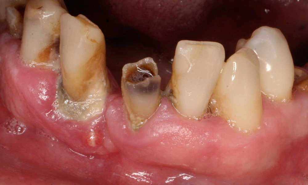 Treating the Wisdom teeth Infection