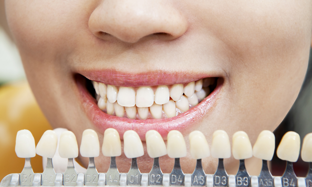 Glamorize Smile with Teeth Whitening Moonee Ponds