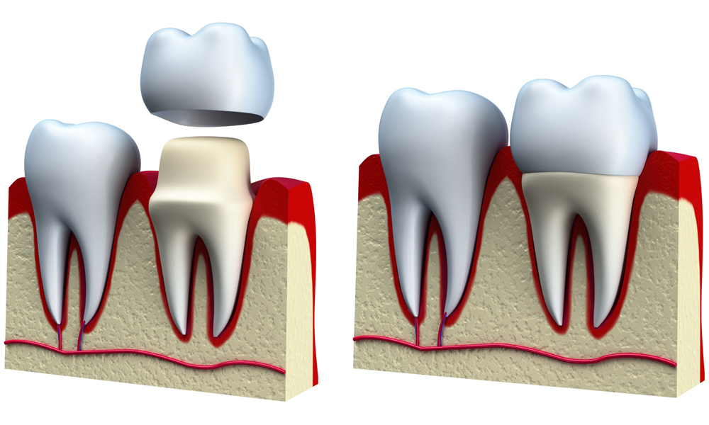 Why You Need A Dental Crown Treatment?