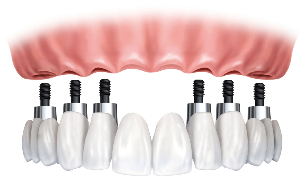 Know About The Dental Implant Treatment