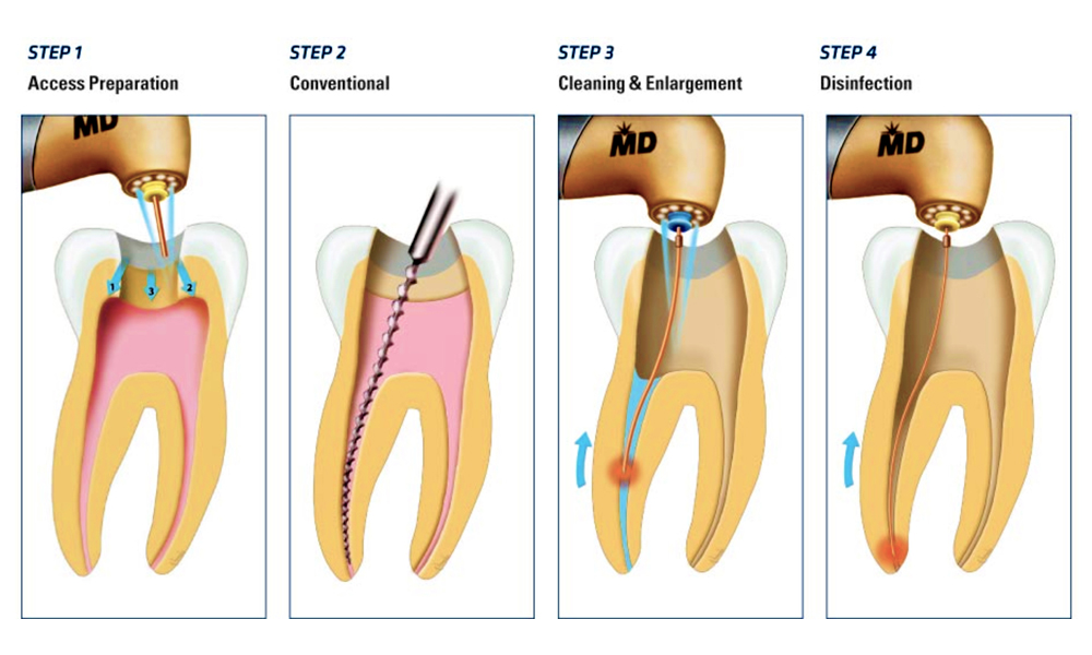 Know Much About The Endodontic Treatment Of Malvern