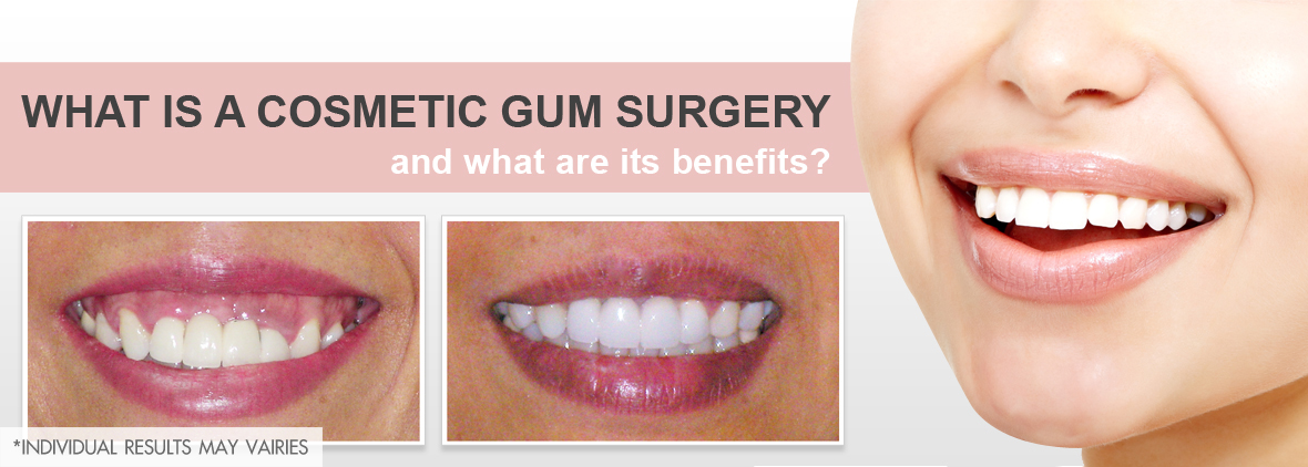 Cosmetic Dentistry: And its Basic Health Benefits