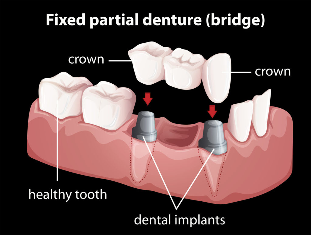 Dental-Bridges-in-Hoppers-Crossing-with-Pros-and-Cons