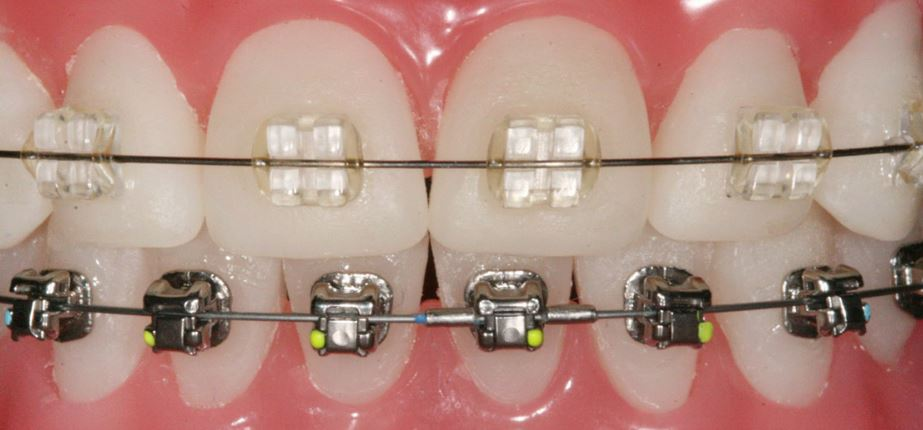 Orthodontics: How It Changed Over Time?