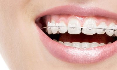 orthodontics-invisalign