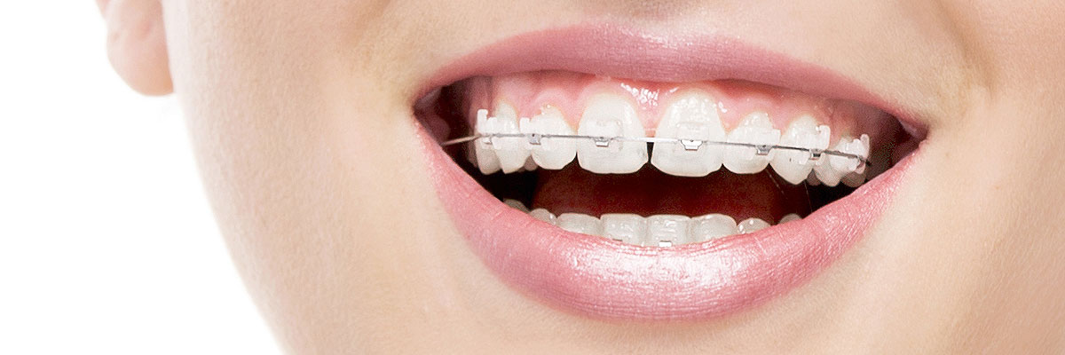 Invisalign Braces or Supports: Best For Youngsters as Well as Grown-Ups