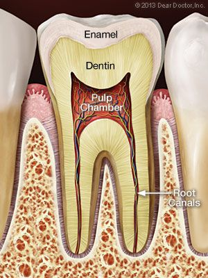 root canal Melbourne