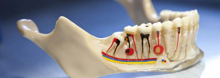 Root Canal Therapy in Melbourne Modern Dentistry