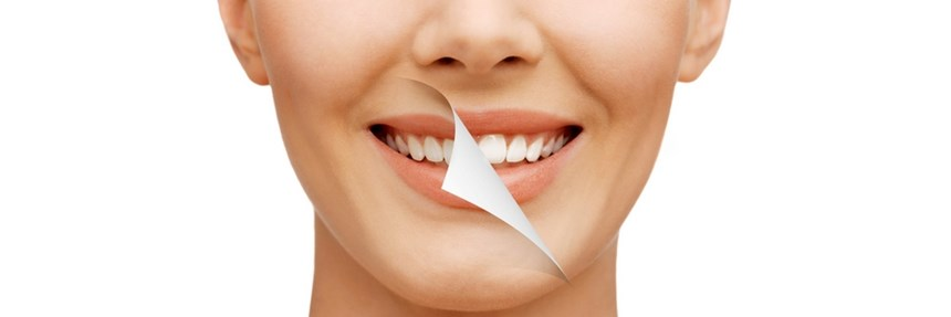 Teeth Whitening Tactics: Choosing Right Way to Whiten Your Smile in Melbourne