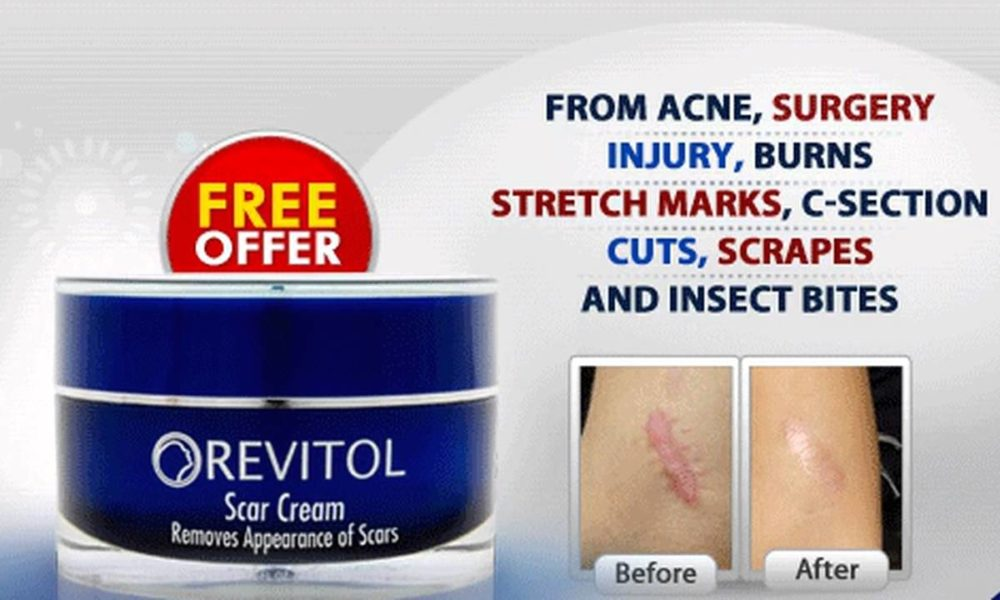 Buy Scar Treatment Cream Online Liveblog Spot