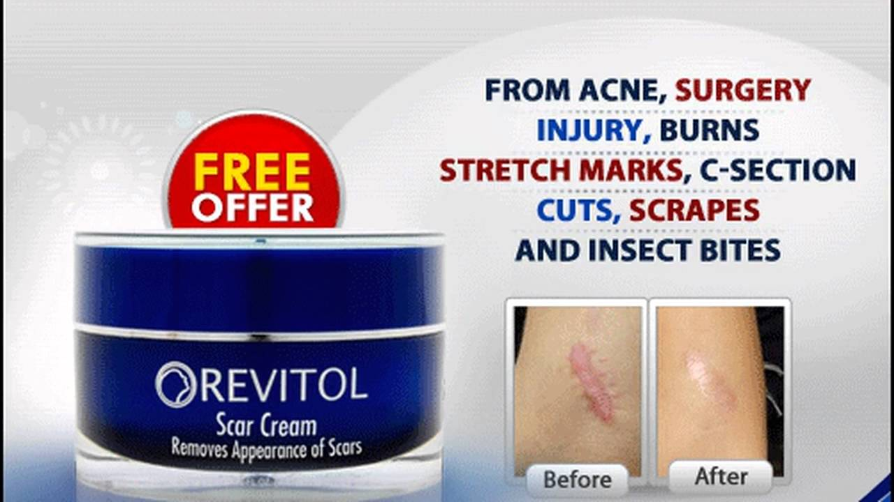 Acne Cream Scar Removal and Treatment