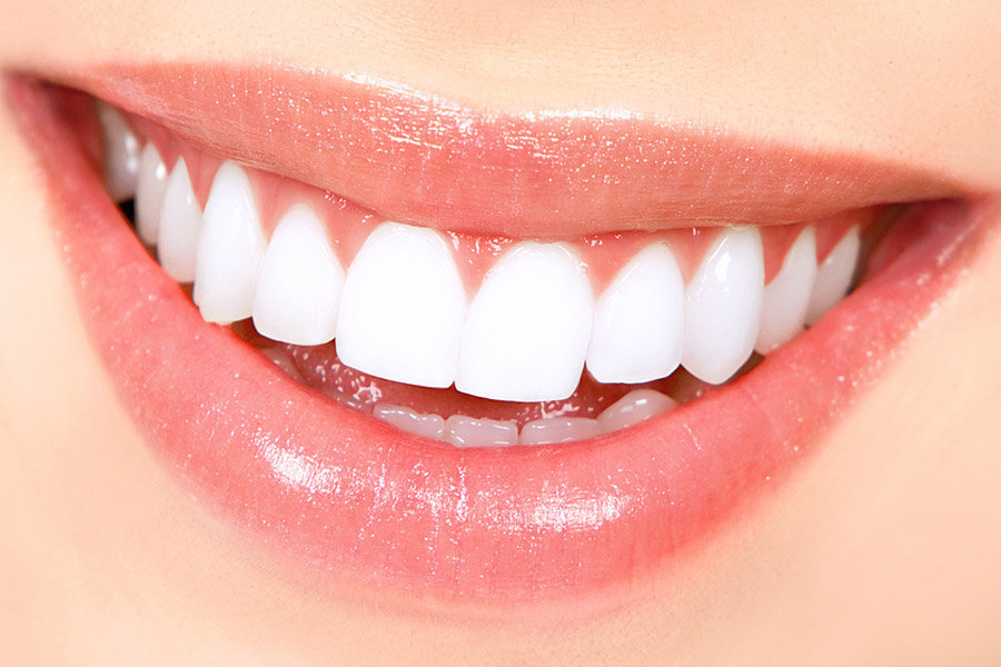 Gain your smile from dentist in Wartirna South
