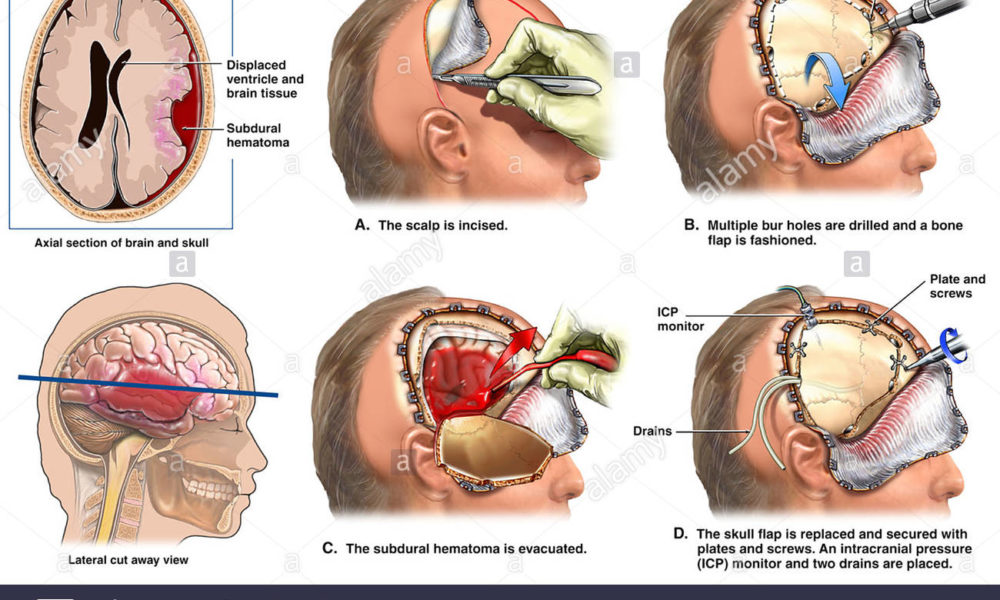 All About Craniotomy Surgery