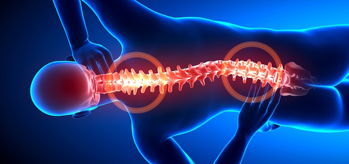 7 Foods That Can Lower Joint Pain Risk