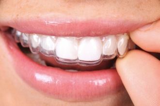 What to Look For In An Lancaster Implant Dentist?