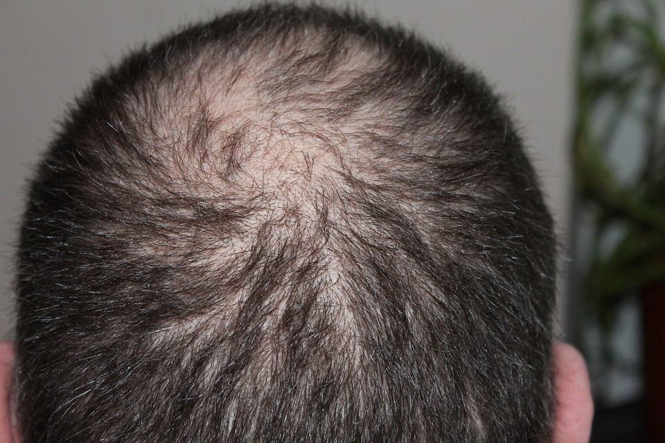 Fight Hair Loss with the Best Hair Replacement Strategies