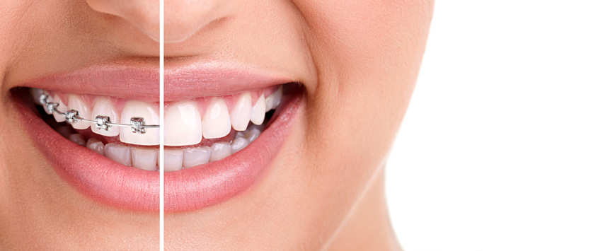 How To Win With The Right Orthodontics Expert In Brunswick, Melbourne?