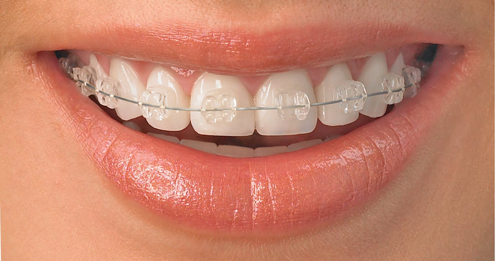 What are the services that you can get from Orthodontics Melbourne?