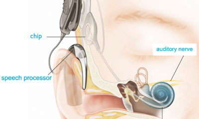 digital hearing aids