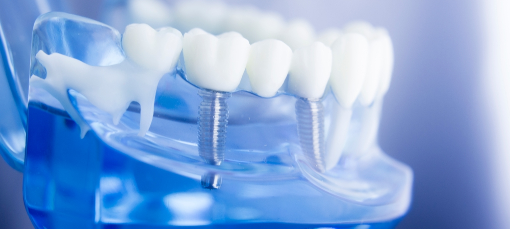 Why Dental Implants Are Important and How It Works or Done?