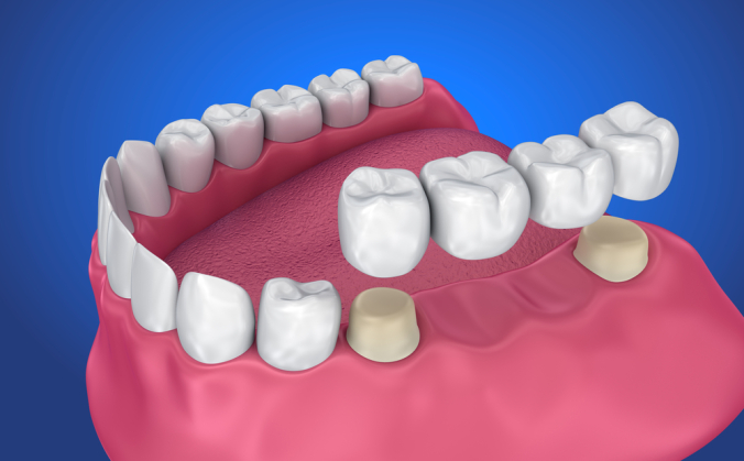 Get to Know The Different Types of Dental Crowns and Dental Crown Design