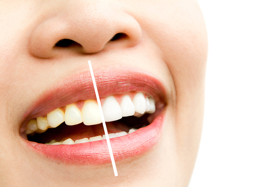 Teeth Whitening: Why You Should Go For It and Why Not?
