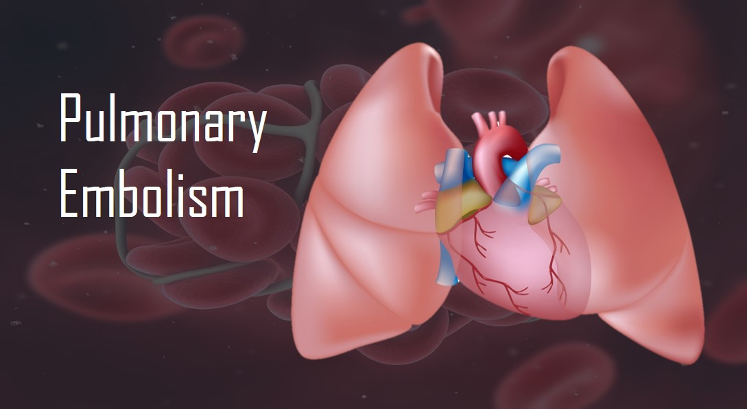 Can You Survive A Pulmonary Embolism?
