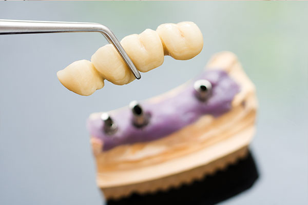 Latest Surgical Innovations For Dental Bridge Melbourne
