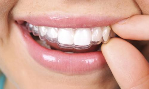 Invisalign Treatment Melbourne Process and Advantages