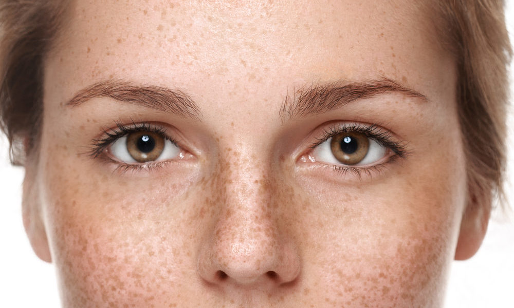How To Get Rid of Pigmentation in Singapore