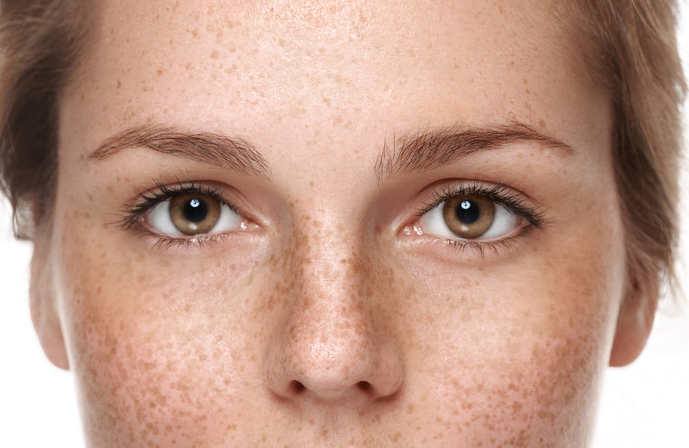 Pigmentation Removal Singapore – Types and Treatment Options