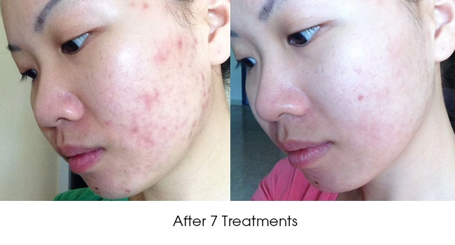 Acne Scar Removal in Singapore: What Options Do You Have