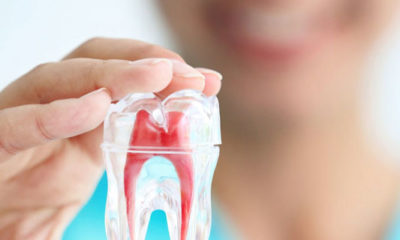 Root Canal Treatment in Auckland